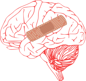 Brain injury clip art at clker vector clip art